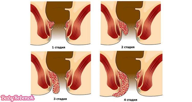 Геморрой при беременности. Лечение геморроя при беременности