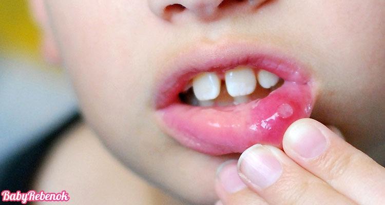 Лечение стоматита у детей. Как лечить стоматит у ребенка