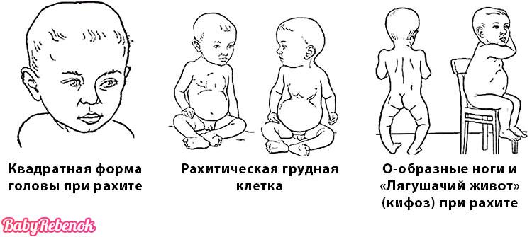 Рахит у детей. Признаки и симптомы рахита у грудничка