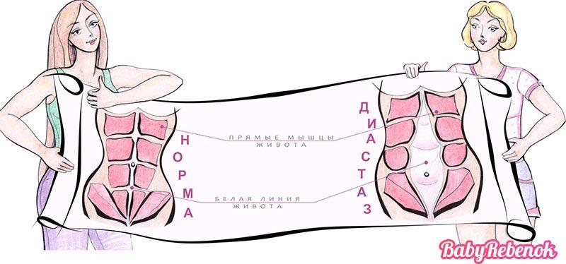 Как убрать живот после родов – Плоский живот через 2 месяца