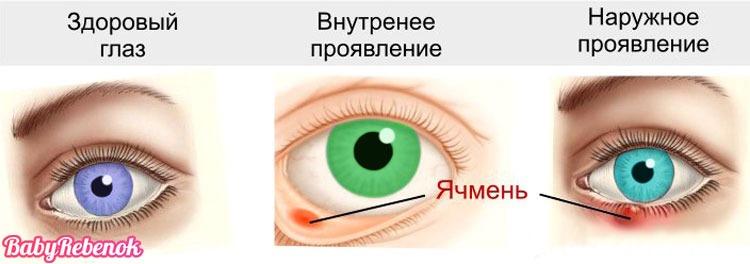 yachmen - Ячмень на глазу у ребенка. Что делать и как лечить