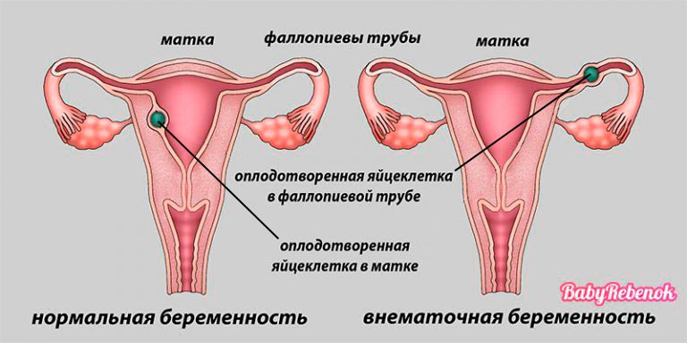 Могут ли быть месячные при беременности на ранних сроках