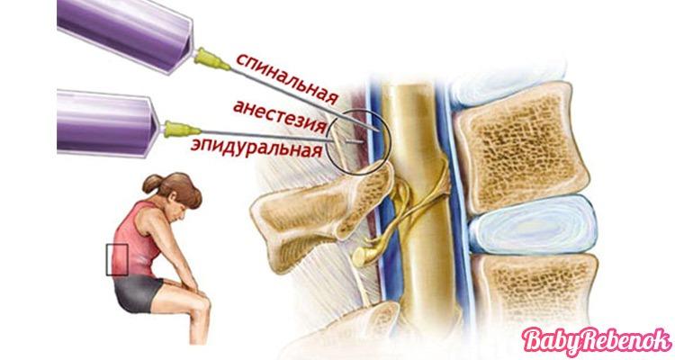Анестезия при кесаревом сечении: спинальная, общий наркоз