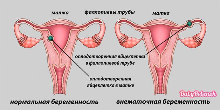Признаки и симптомы внематочной беременности: причины, лечение