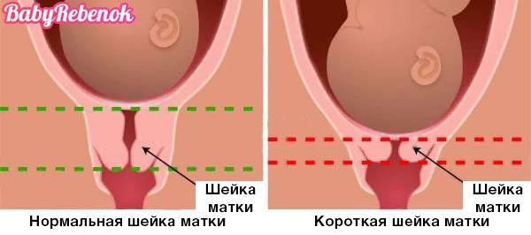 Шейка матки при беременности: короткая, размеры, длина, УЗИ