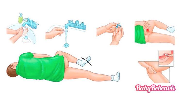 Глицериновые свечи при беременности: отзывы, инструкция