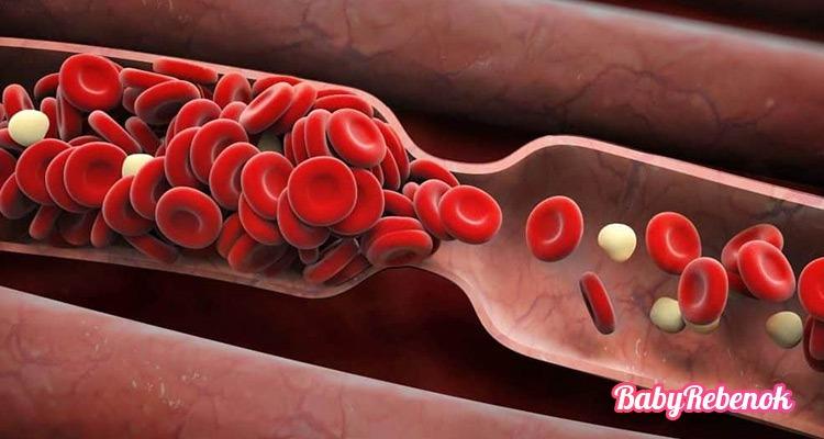 Тромбофилия при беременности: симптомы, лечение, диета